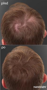 Alopecie - Vše o zdraví
