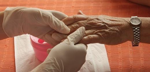 Alzheimer léky - Vše o zdraví