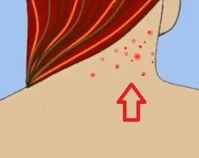 Akné na krku - Vše o zdraví
