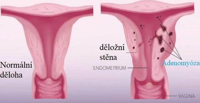 Adenomyoza - Vše o zdraví