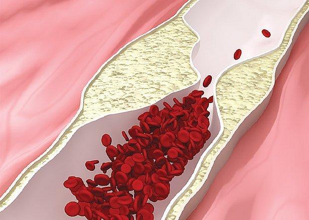Bolesti ledvin - Vše o zdraví