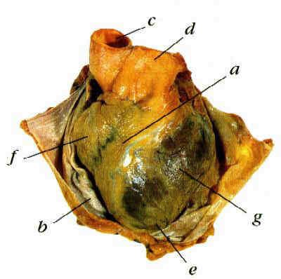 Anatomie srdce - Vše o zdraví