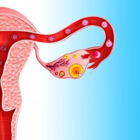 Cista na vaječníku - Vše o zdraví