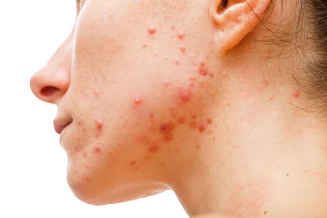Antibiotika na akné - Vše o zdraví