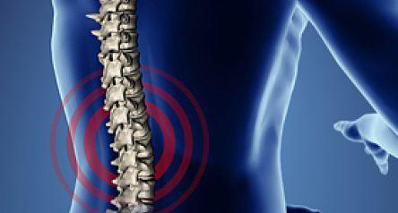 Artróza - Vše o zdraví