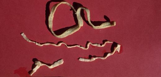 Ascaris lumbricoides - Vše o zdraví