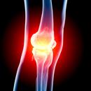 Cysta pod kolenem - Vše o zdraví