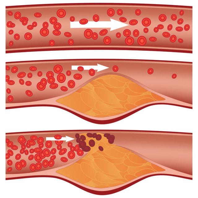 Cholesterol hodnoty - Vše o zdraví