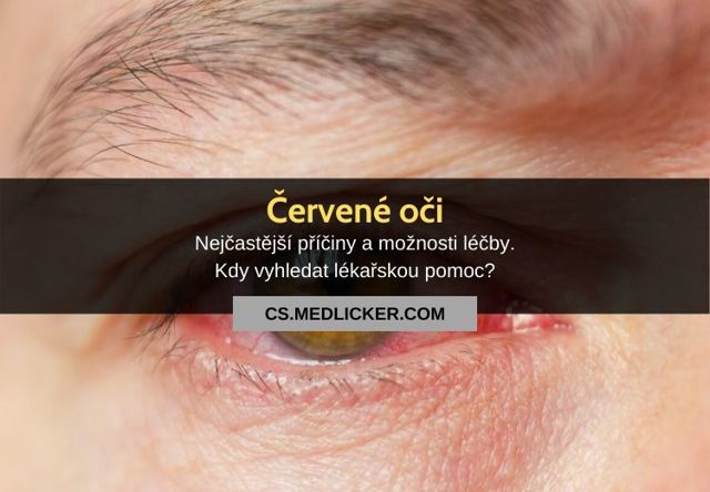 Červené oko - Vše o zdraví