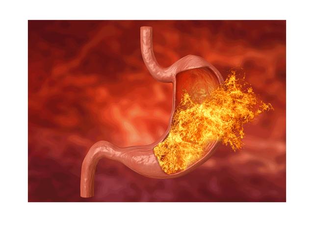Bolest žaludu - Vše o zdraví