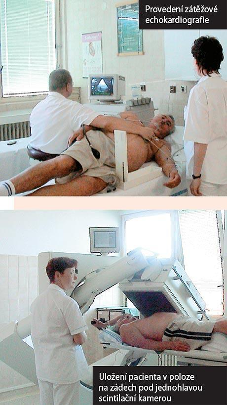 Echokardiografie - Vše o zdraví