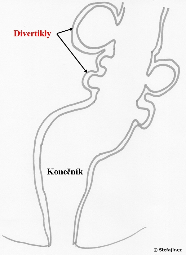 Divertikly - Vše o zdraví