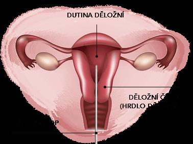 Děložní polyp - Vše o zdraví