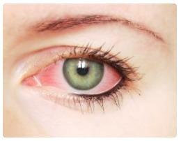 Borová voda do očí - Vše o zdraví