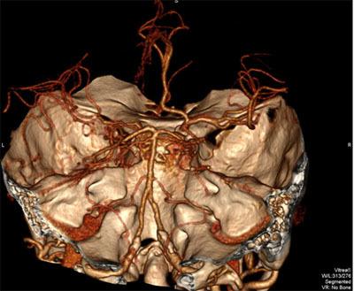 Ct mozku - Vše o zdraví