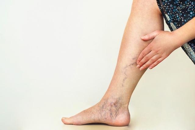 Bolest v lýtkách - Vše o zdraví