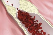 Cholesterol - Vše o zdraví