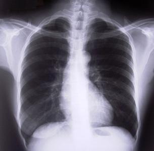 Bronchoskopie - Vše o zdraví