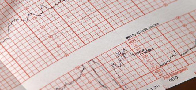 Holter - Vše o zdraví