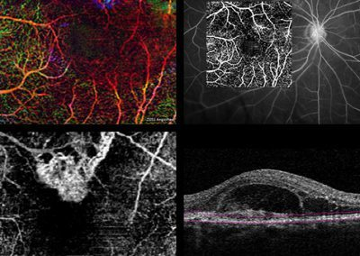Angiografie - Vše o zdraví