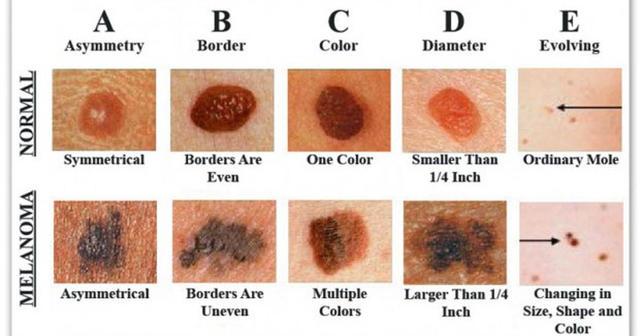 Červené fľaky na koži - Vše o zdraví