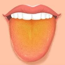Červené fleky na jazyku - Vše o zdraví