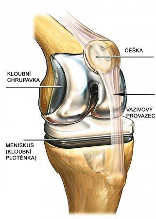 Čéška v koleni - Vše o zdraví
