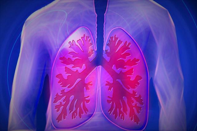 Chlamydie plicní - Vše o zdraví
