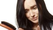 Bolest vlasů - Vše o zdraví