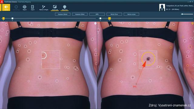 Test rizika vzniku melanomu kůže – vše o zdraví