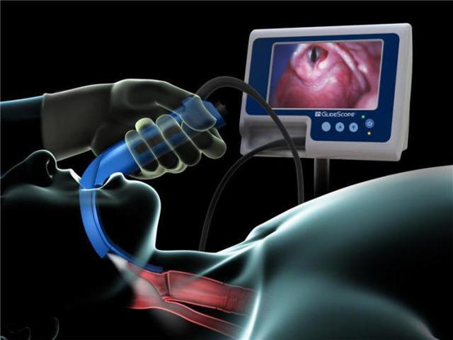 Laryngoskopie - Vše o zdraví