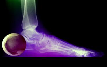 Léčba ostruhy na patě - Vše o zdraví