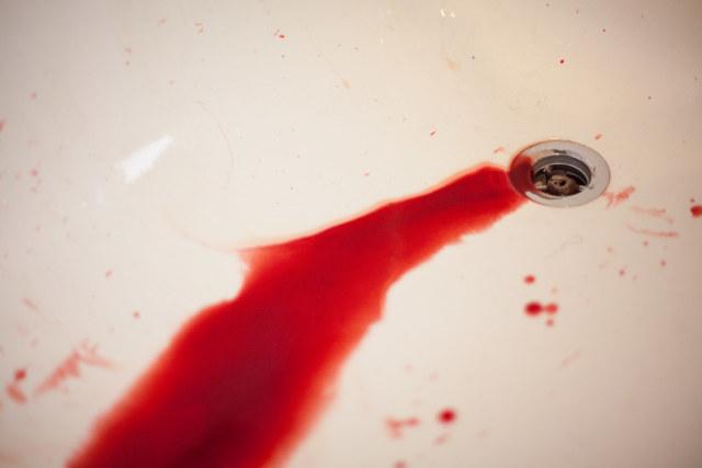 Krev v moči u mužů - Vše o zdraví