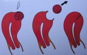 Myom v děloze - Vše o zdraví