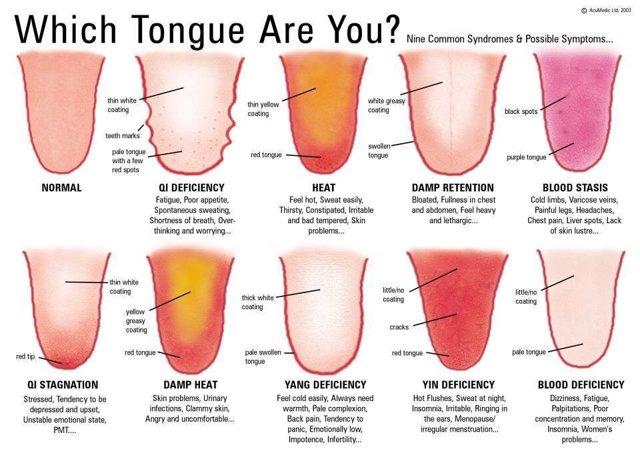 Jazyk - Vše o zdraví