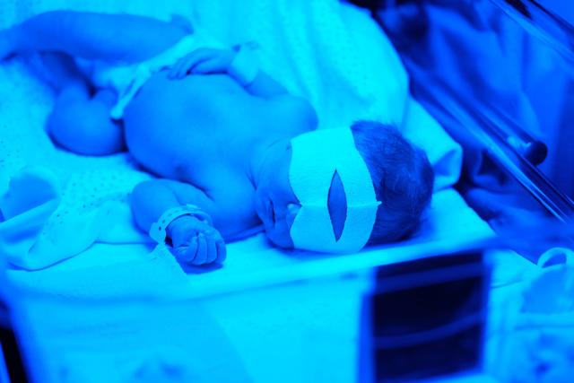 Novorozenecká žloutenka - Vše o zdraví