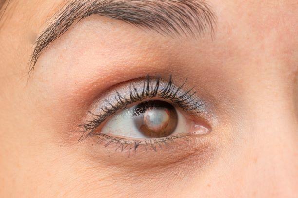 Krvavé oko - Vše o zdraví