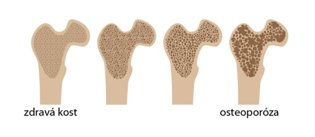 Prevence osteoporózy - Vše o zdraví