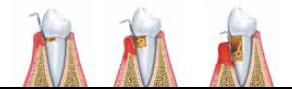 Krvácení dásní léčba - Vše o zdraví