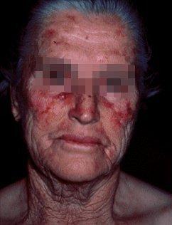 Kožní nádory foto - Vše o zdraví