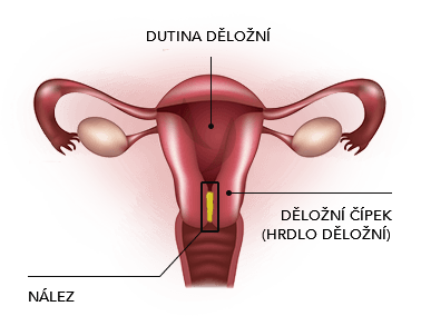 Konizace děložního čípku - Vše o zdraví