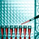 Jaterní testy - Vše o zdraví