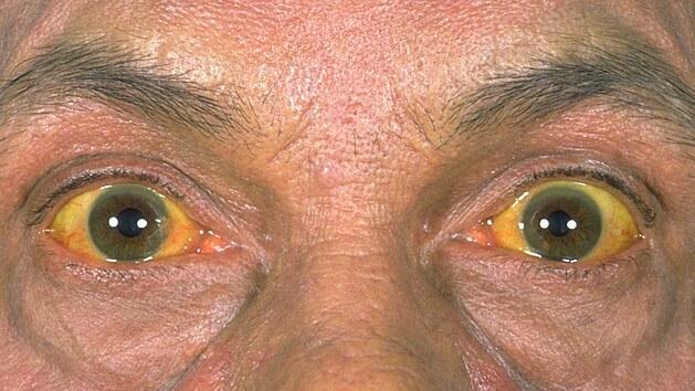 Jaterní cirhoza - Vše o zdraví