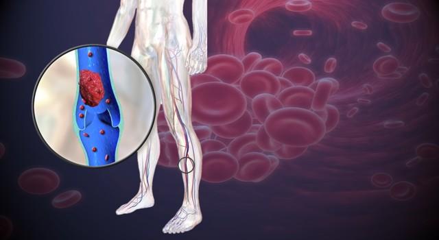 Příznaky trombózy - Vše o zdraví