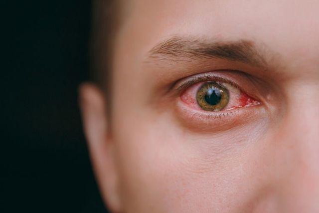 Prasknutá cievka v oku - Vše o zdraví