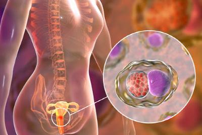 Přenos chlamydií - Vše o zdraví