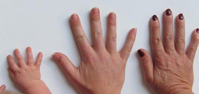 Praskání kůže - Vše o zdraví