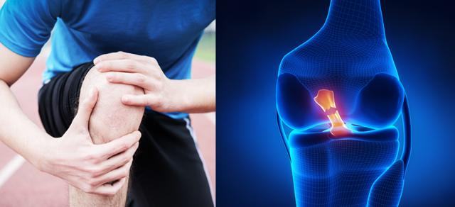Přetržené vazy v koleni - Vše o zdraví