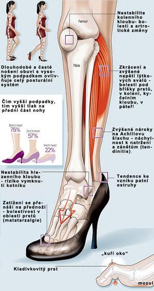 Nártní kosti - Vše o zdraví