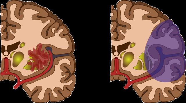 Krvácení do mozku - Vše o zdraví